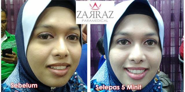 testimoni pengguna lipstic zarraz, zarraz paramedical