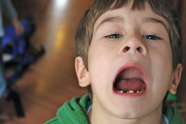 baby teeth photos