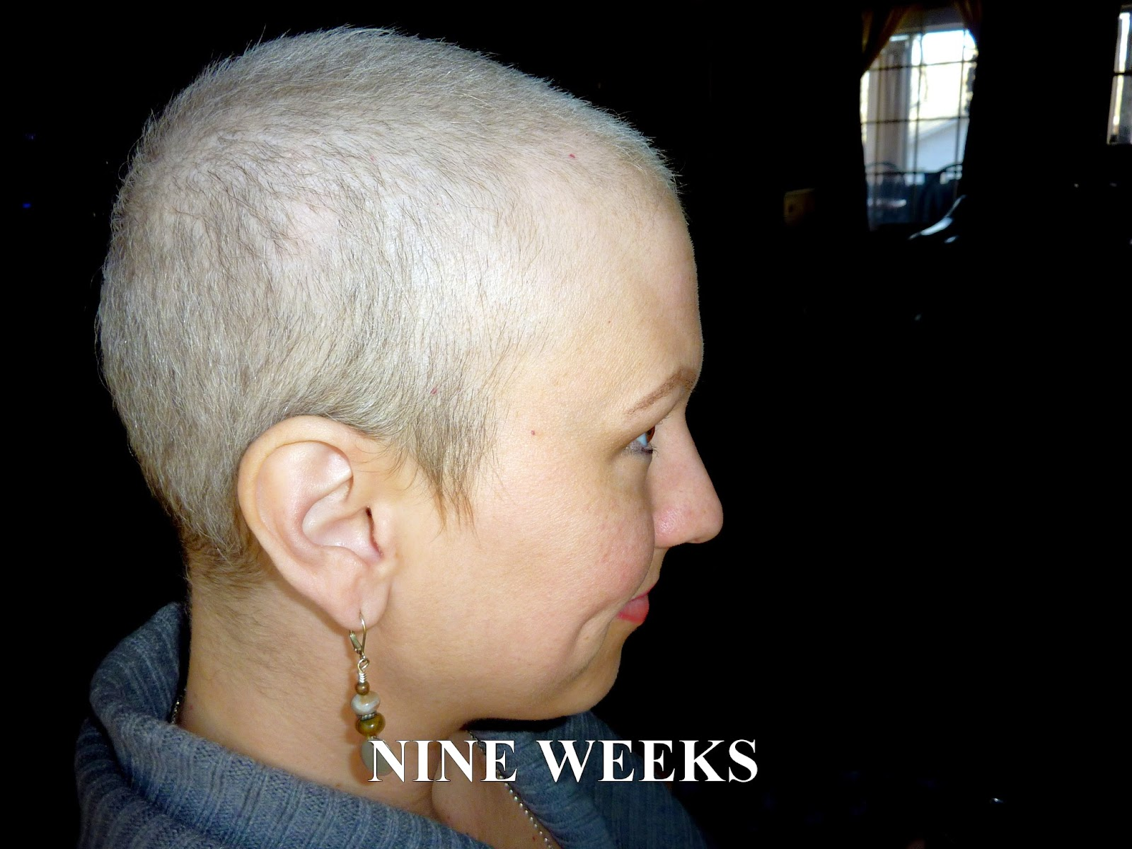 Anncredible: Hair Growth Progression after Chemo- Six ...