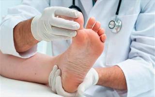 Entorse do dedo do pé: sintomas e tratamento