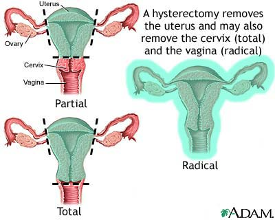 Fibroids Surgical Treatment Hysterectomy