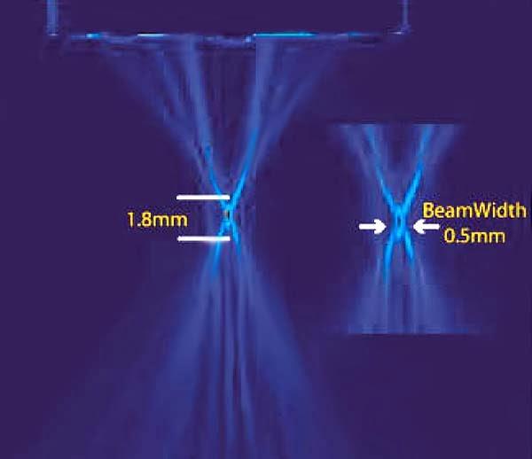 極線音波拉提(Ultherapy)利用聚焦超音波對皮膚加熱