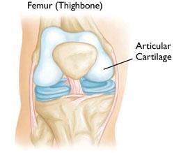 Nyeri lutut, oa, osteoarthritis