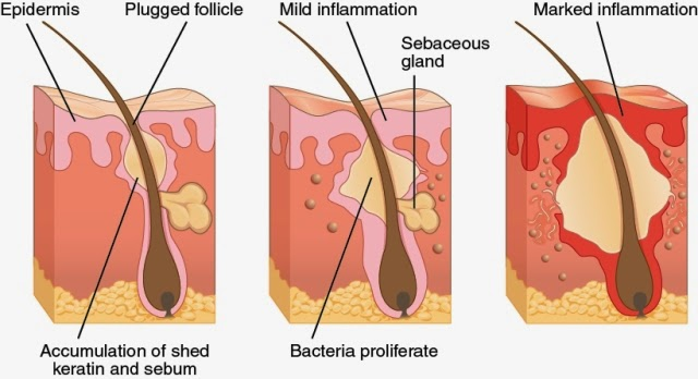 Acne treatment, Remedies for Acne