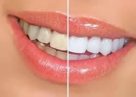 tips cara memutihkan gigi kuning