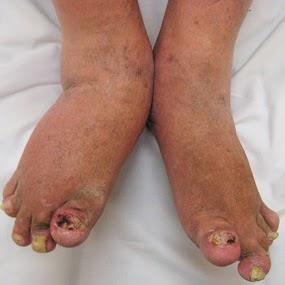 gambar penyakit psoriasis