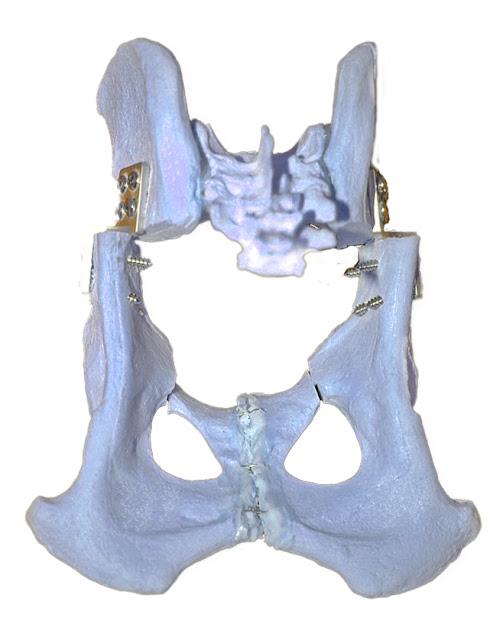 Doble osteotomía cadera en perro