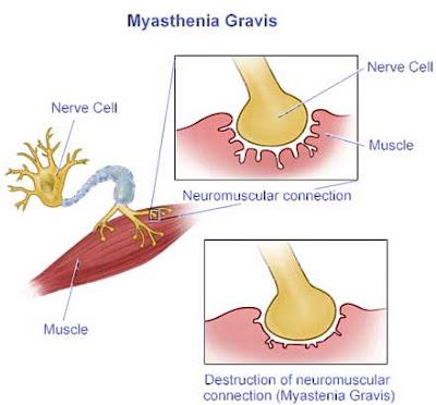myasthenia gravis syndrome