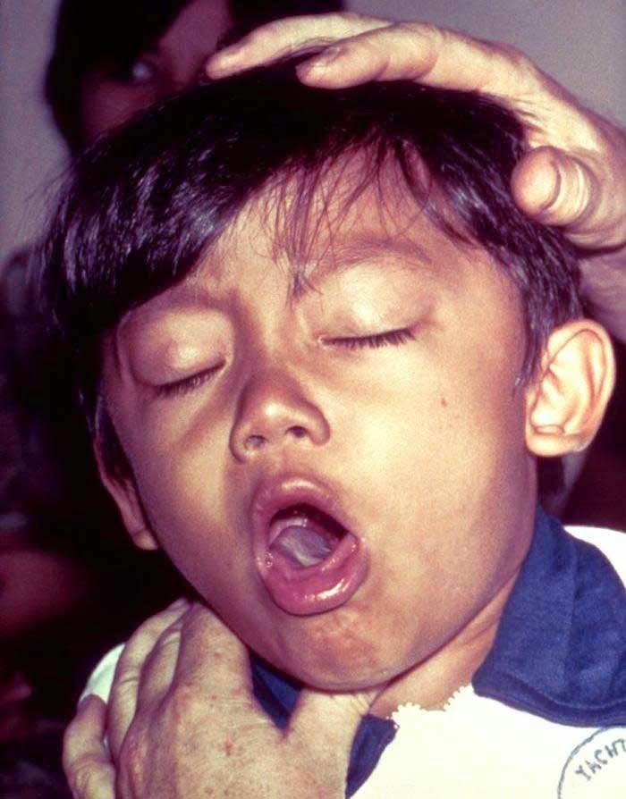 sakit batuk pada bayi dan anak di sertai pilek