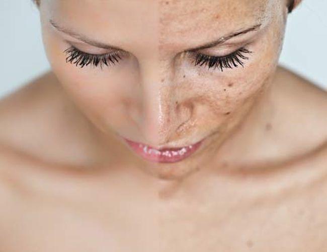 Remedios naturales para manchas en la piel