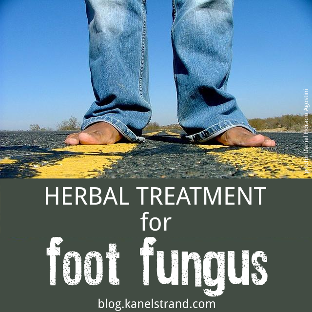 Effective Herbal Treatment for Foot Fungus (Athlete's foot) via @kanelstrand