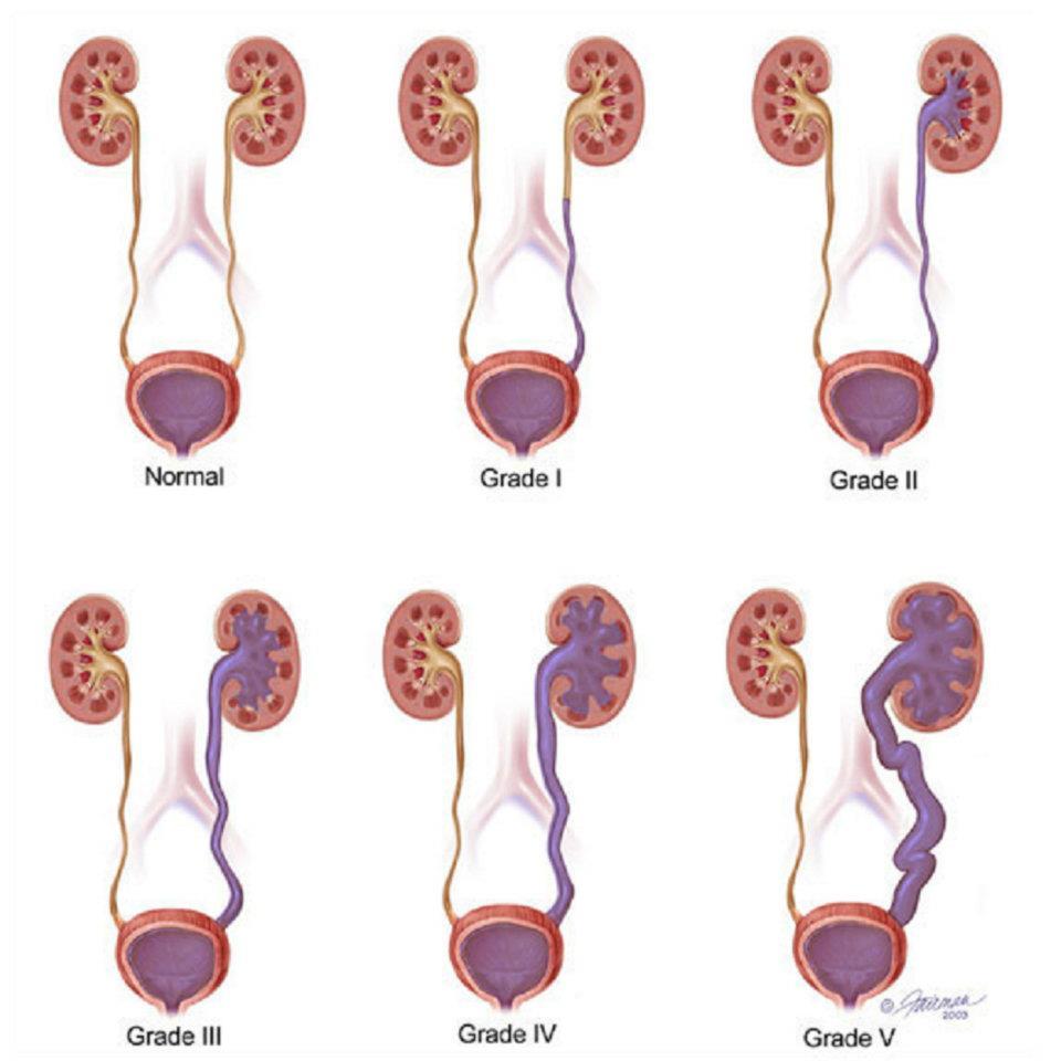 njurbäckeninflammation gravid symptom