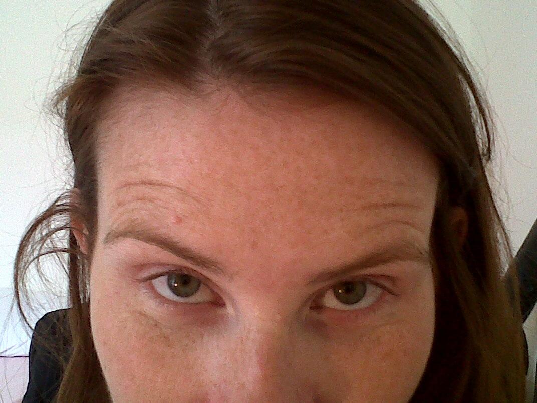 Migraine Monologues Botox Breaking News