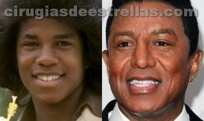 Jermaine Jackson antes y después