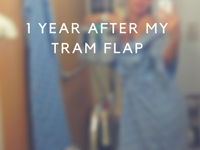 1 Year After My TRAM Flap