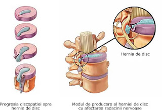 Cauzele, simptomele si tratamentul herniei de disc