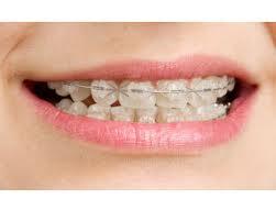 Senyum Indah di Balik Kawat Gigi