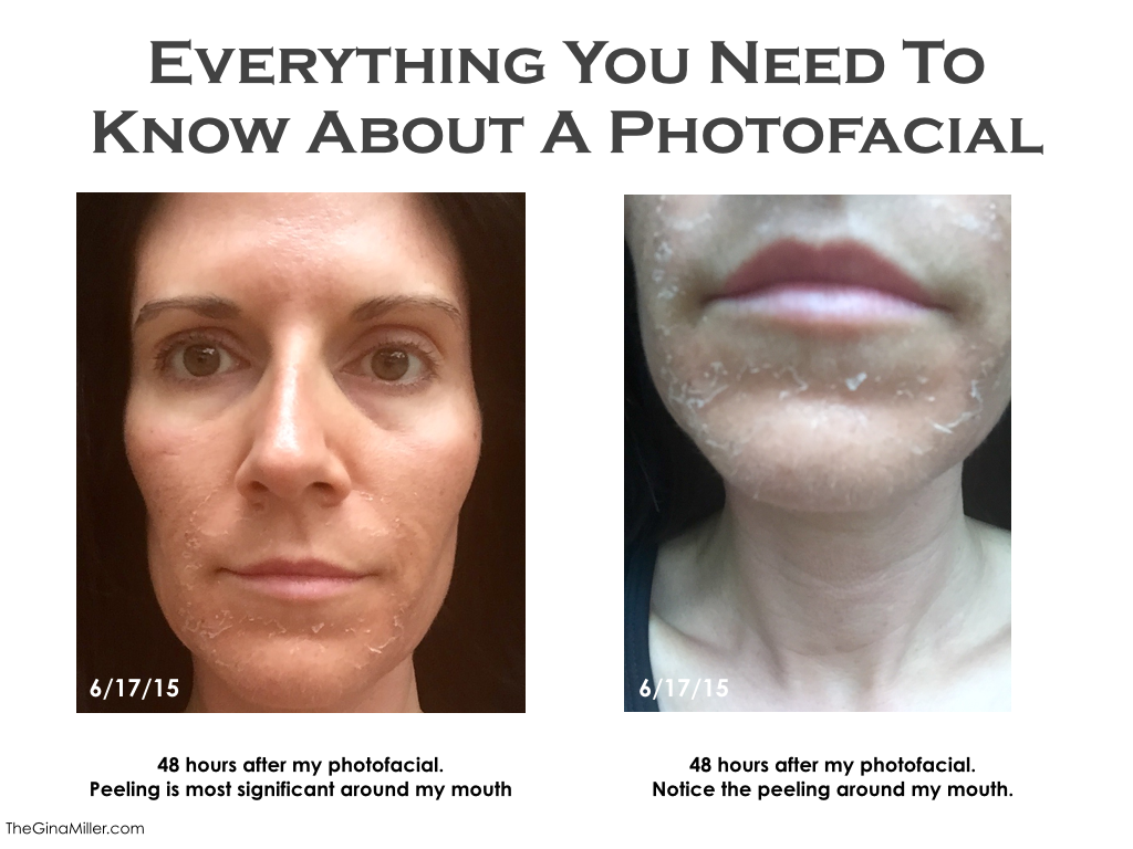 foto facial side effects