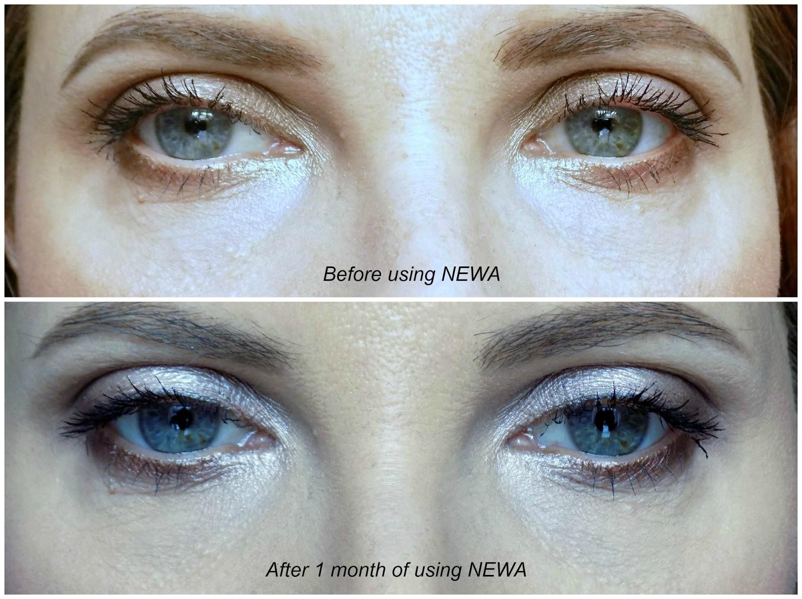 HoMedics NEWA - Skin Rejuvenation Treatment