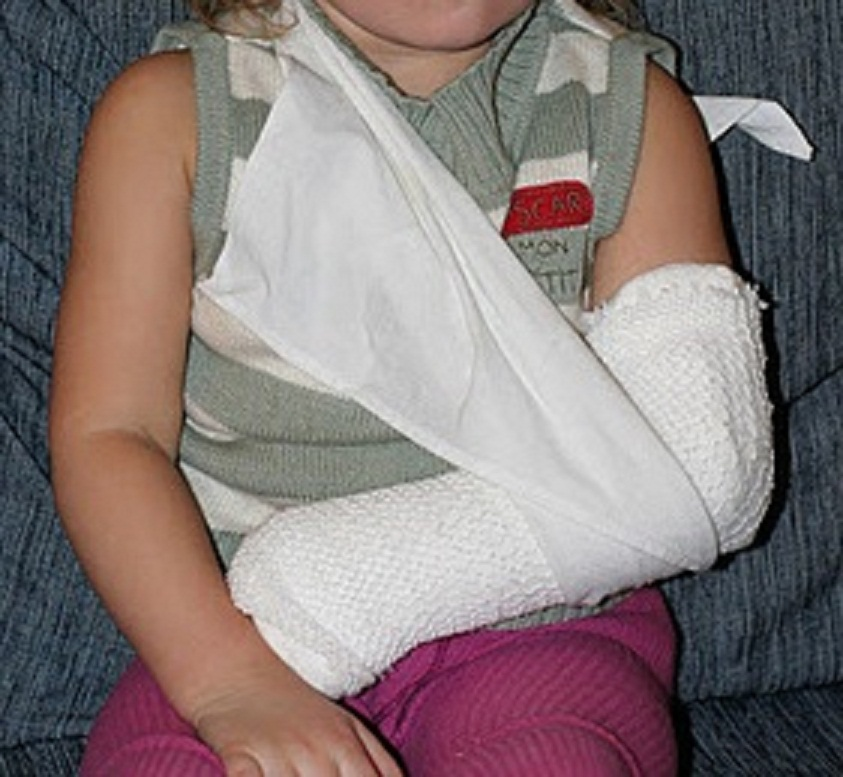 fractures are breaks in the bones a simple fracture is one where there -4.bp.blogspot.com