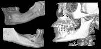Todo lo que debes saber sobre los implantes dentales 3