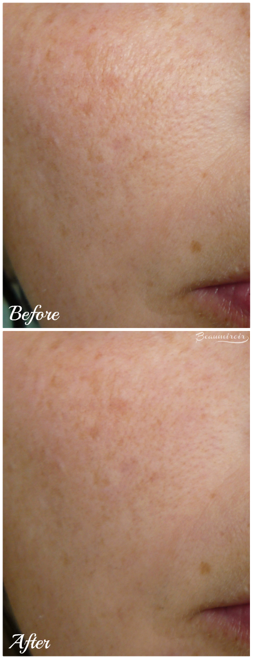 Clarins Instant Smooth Perfecting Touch: before/after picture