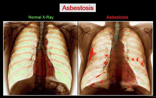 Asbestosis Color Chest X-Ray, Normal versus Abnormal
