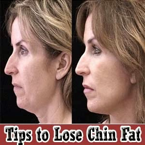 Diet to lose chin fat yahoo