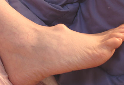 Growth Spurt: Ganglion Cyst