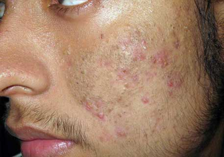 Las máscaras contra de los granos y el acné