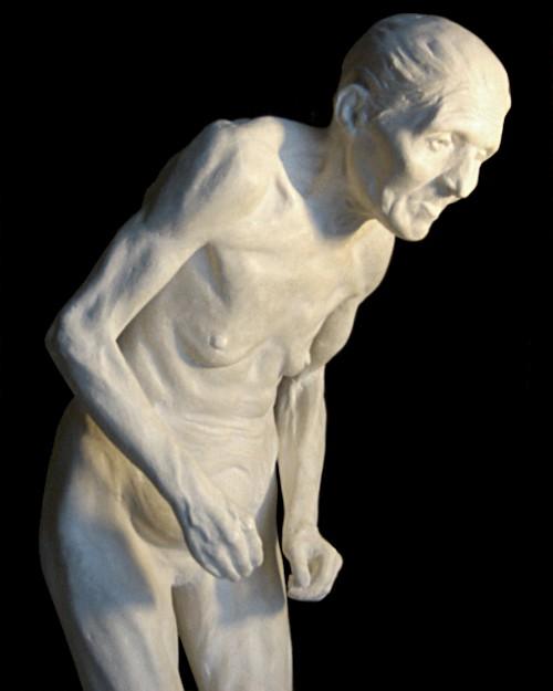 Paul Richer - statuette af gammel kvinde med Parkinsons sygdom