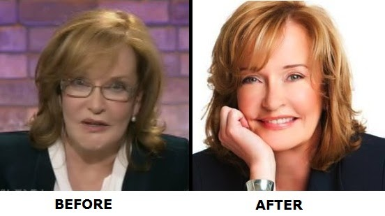 Marilyn denis before and after plastic surgery