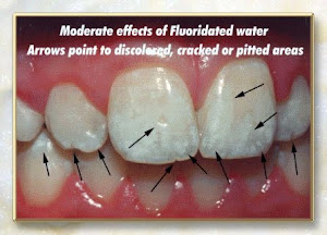 'dental fluorosis' looks like this ...