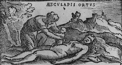Cesarean History