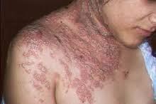 Cara Tradisional Sembuhkan Penyakit Herpes