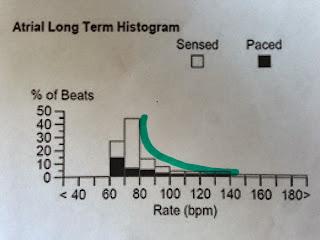 Pacemaker Histogram