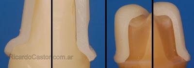 ajuste corona circonio ceramica dental