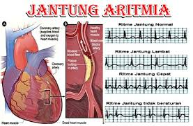 Obat Aritmia Jantung