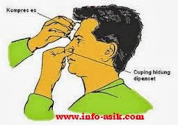 Cara menanggulani mimisan....!!!   http://poerwalaksana.blogspot.com/