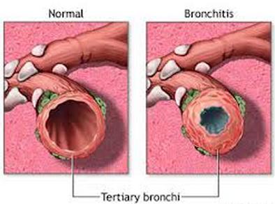 Cara menyembuhkan penyakit bronkitis