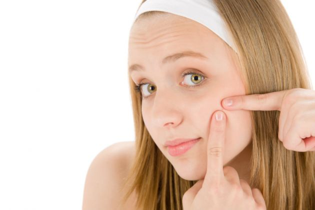 Que quitar las cicatrices después del acné