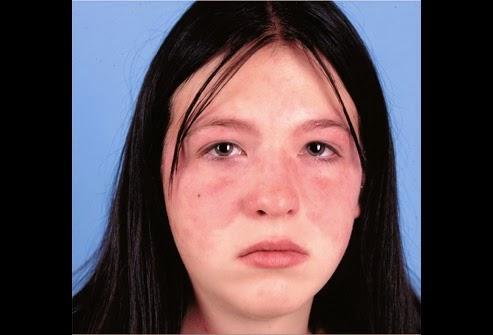 Macam-macam dan Obat Alami Lupus
