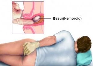 Геморрой трещины из анала лечение и профилактические советы