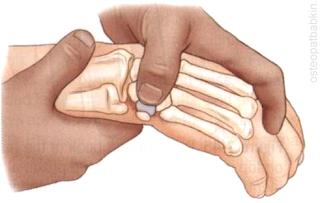 С крючковидной кости мы можем снова перейти проксимально и немного ульнарно и оказаться над трехгранной костью.