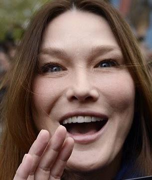 carla bruni deformada con cara de ardilla por abuso de botox