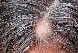 جفاف فروة الراس وتساقط الشعر