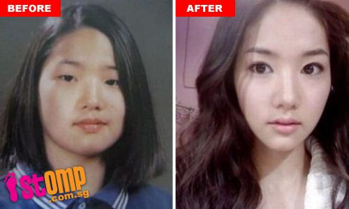 Звезды до и после Tourists_flock_to_south_korea_surgeons_seeking_celebrity_looks-thumbnail