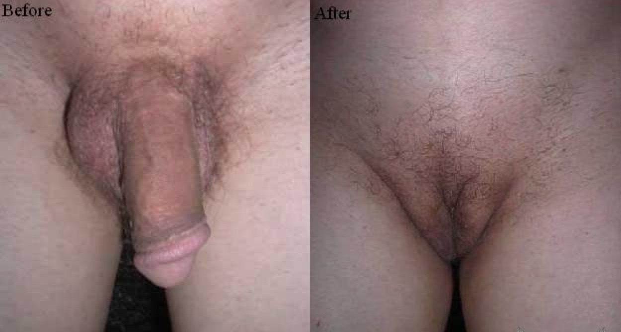 hole women before and after sex