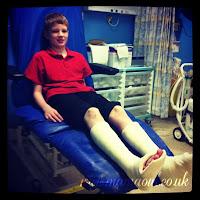 serial leg casting