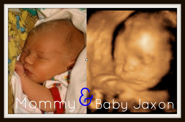 What your baby looks like at 25 weeks  BabyCenter